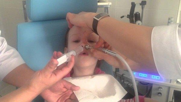 Промывание носа методом «Кукушка»